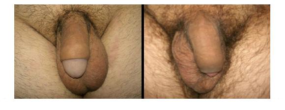 circoncisione e fimosi