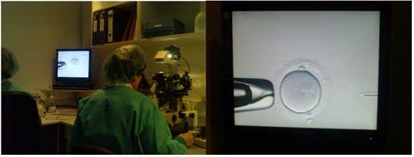 Iniezione intracitoplasmatica dello sperma (ICSI)