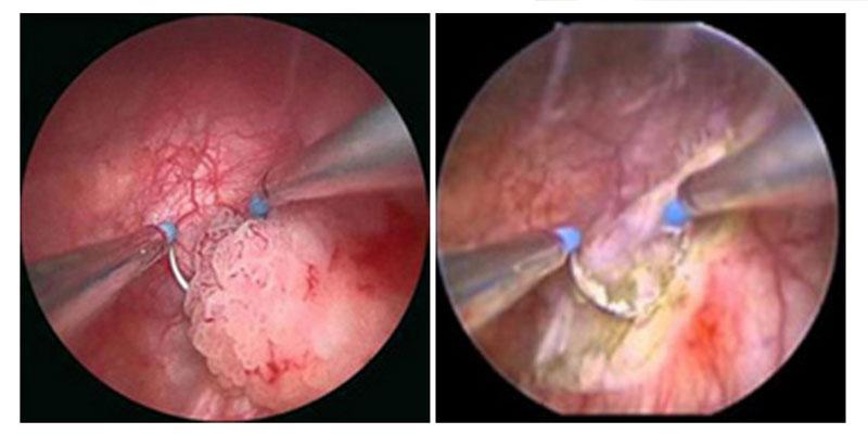 Neoplasia vescicale
