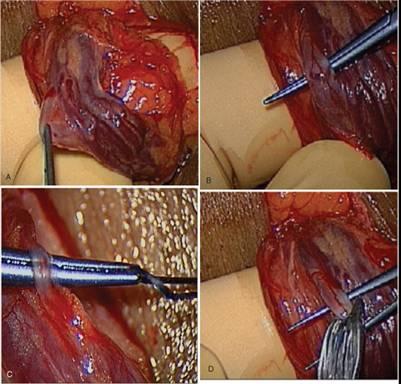 varicocelectomia