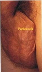 Come trattare thrombophlebitis delle estremità più basse