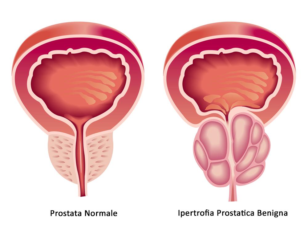 Problemi alla prostata