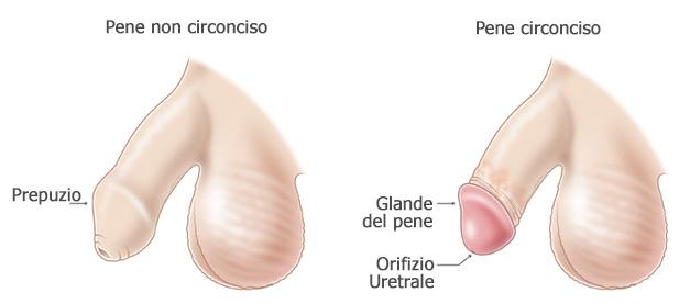 Circoncisione del pene
