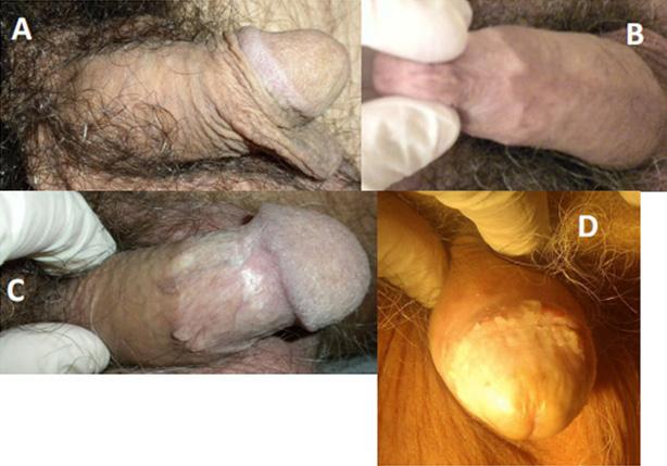 Circoncisioni sbagliate