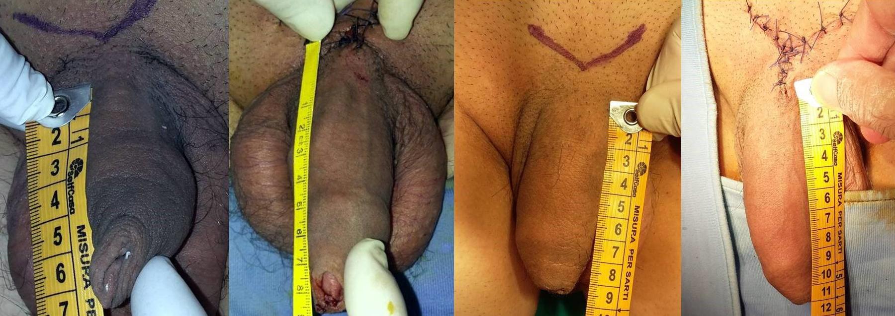 Allungamento del pene prima e dopo