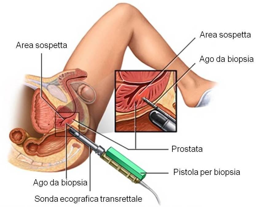 Biopsia prostatica
