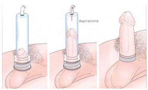 Disfunzione erettile Vacuum device