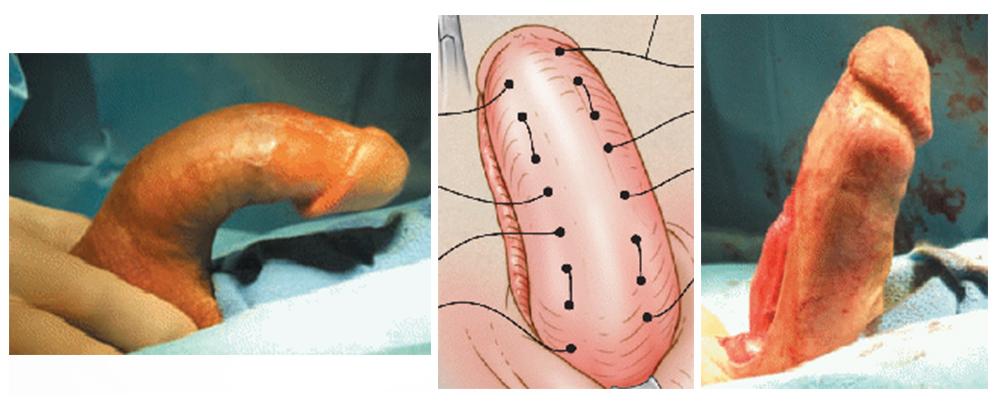 IPP (Induratio Penis Plastica)