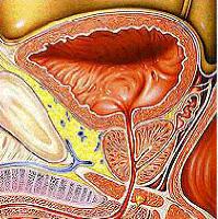 Tumore alla vescica