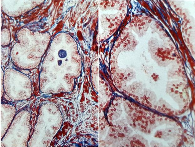 Sezione al microscopio ottico della prostata