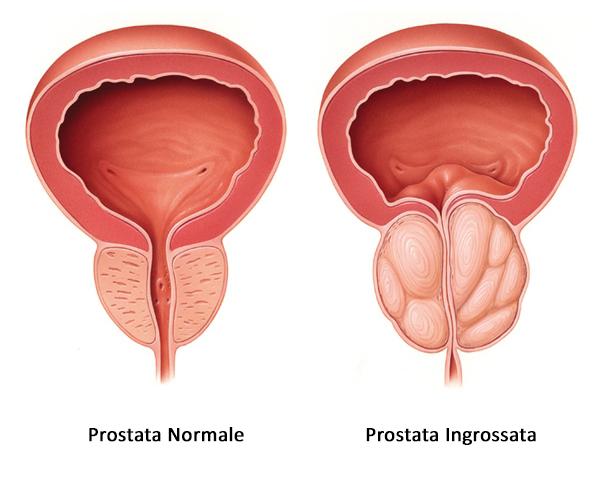 Prostata ingrossata sintomi