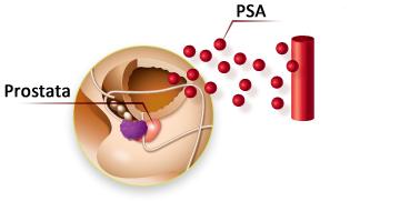 PSA Prostata